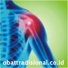 Sakit Bahu - Obat Tradisional Fengshibao | sakitpinggang.com
