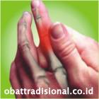 Sakit Jari - Obat Tradisional Fengshibao | sakitpinggang.com