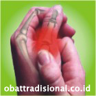 Sakit Jempol - Obat Tradisional Fengshibao | sakitpinggang.com