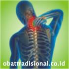 Sakit Leher - Obat Tradisional Fengshibao | sakitpinggang.com