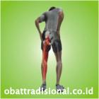 Sakit Pantat Pinggul Paha Betis Kaki - Obat Tradisional Fengshibao | sakitpinggang.com