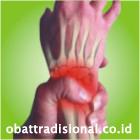 Sakit Pergelangan Tangan - Obat Tradisional Fengshibao | sakitpinggang.com