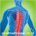 Sakit Punggung - Obat Tradisional Fengshibao | sakitpinggang.com