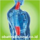 Sakit Ruas Tulang Belakang - Obat Tradisional Fengshibao | sakitpinggang.com